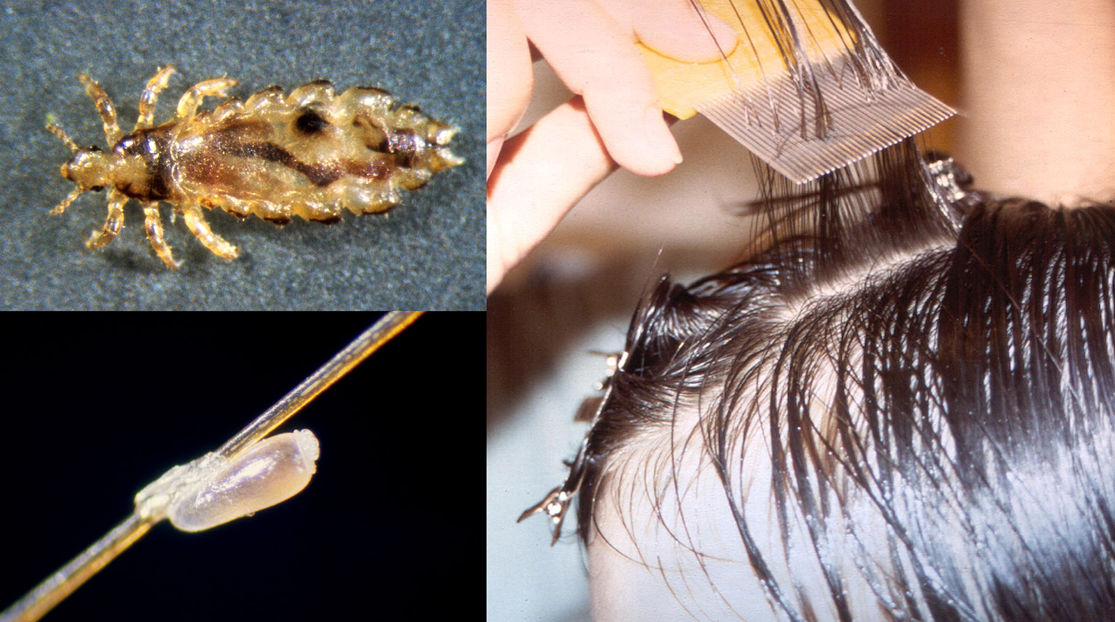 (L-R) Adult louse (highly magnified); Nit (egg) on a strand of hair (highly magnified); Use a nit comb on wet hair. Photos by UNL Entomology and Barb Ogg, Extension Educator, Emeritus