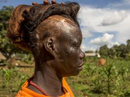 From the Global Eyewitness Uganda trip: Polline Angeyo lifts her wig to reveal scars from the 1995 LRA attack on her home village of Awach in northern Uganda. Photo by Gabriella Parsons.